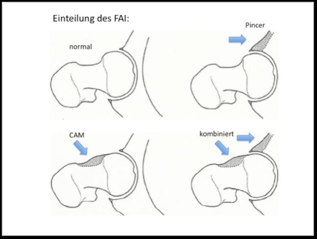 Der Schmerz im Brustkorb rechts die Osteochondrose